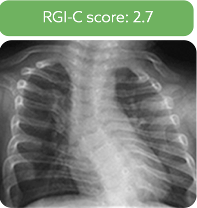 Chest radiograph from a patient after 48 weeks of treatment with Strensiq