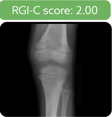 Knee radiograph from a patient after 6 months of treatment with Strensiq