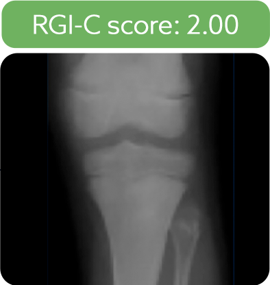 Knee radiograph from a patient after 5 years of treatment with Strensiq
