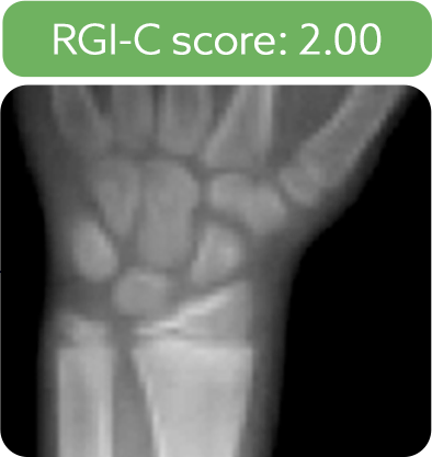 Wrist radiograph from a patient after 5 years of treatment with Strensiq
