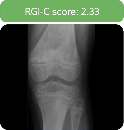 Knee radiograph from a patient after 6 months of treatment with Strensiq.