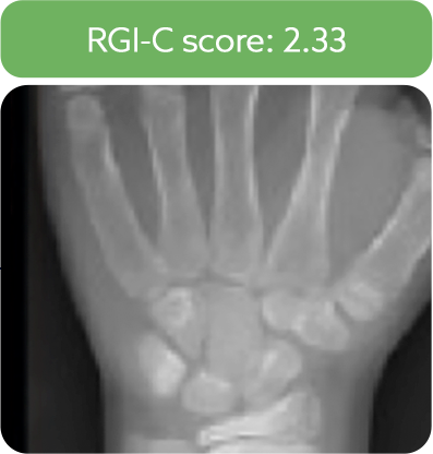 Wrist radiograph from a patient after 6 months of treatment with Strensiq