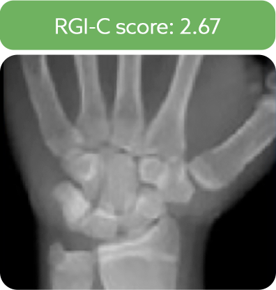 Wrist radiograph from a patient after 5 years of treatment with Strensiq.