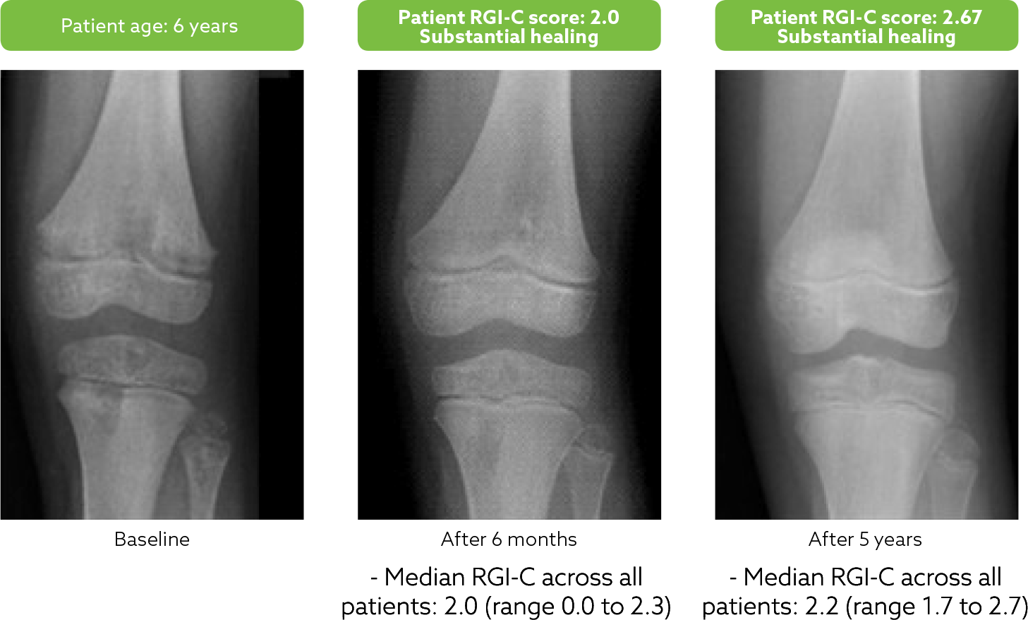 Knee of patient at baseline (left), after 6 months of treatment with Strensiq (middle), and after 5 years of treatment with Strensiq (right)