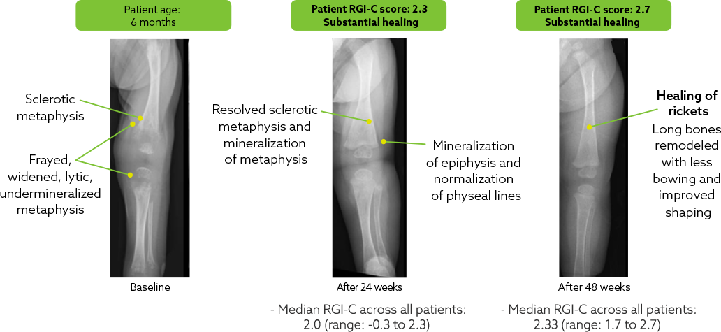 Knee of patient at baseline (left), after 24 weeks of treatment with Strensiq (middle), and after 48 weeks of treatment with Strensiq (right)